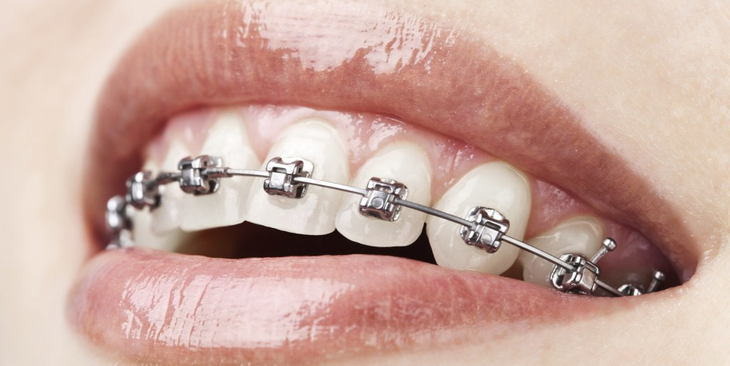 Orthodontic Malpractice | Miller Ogorchock Law Firm
